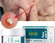 Powerful Acne and Pimples Treatment | Skin Care for sale in Imo State, Owerri
