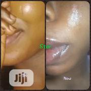 Tribal Mark And Face Scar Cream | Skin Care for sale in Lagos State, Ajah